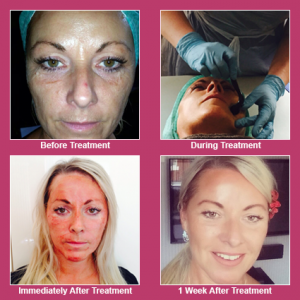 Nytox Facial - Clear Complexion, Manchester
